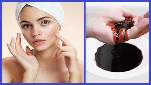 sanar acné con sangre drago