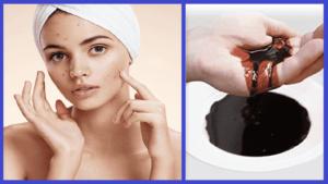 sanar acne con sangre de drago